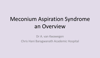 Meconium aspiration syndrome...